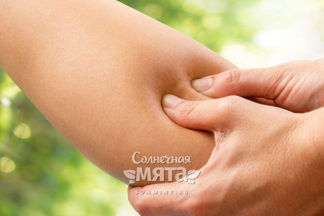 Синяк после нажатия на кожу показывает недостаток витамина P, фото